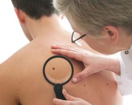 Hautkrebsuntersuchung